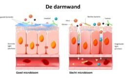 verbeter je microbioom de darmwand